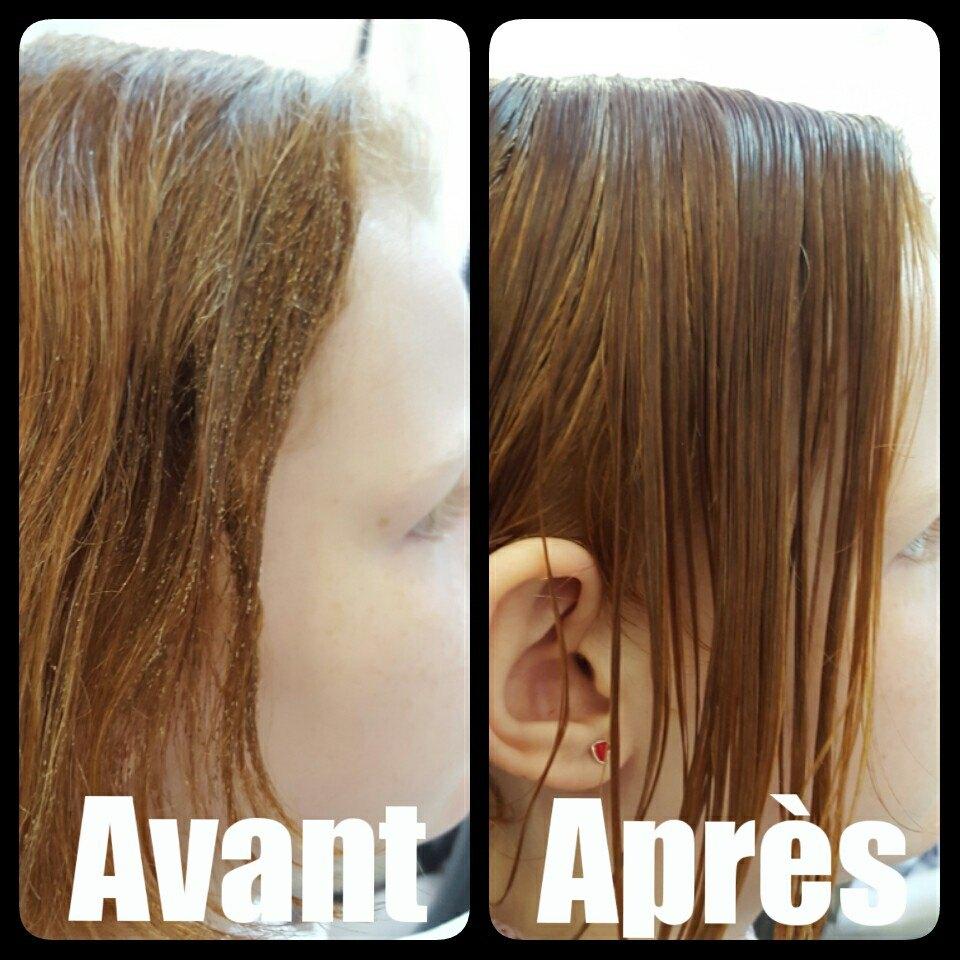 Traitement poux cheveux longs